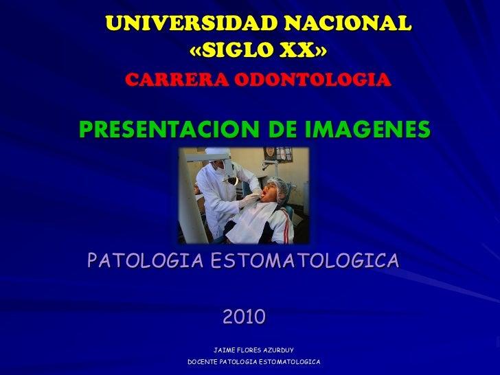 UNIVERSIDAD NACIONAL      «SIGLO XX»   CARRERA ODONTOLOGIAPRESENTACION DE IMAGENESPATOLOGIA ESTOMATOLOGICA               2...