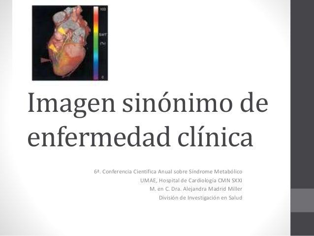 Imagen sinónimo de  enfermedad clínica  6ª. Conferencia Científica Anual sobre Síndrome Metabólico  UMAE, Hospital de Card...