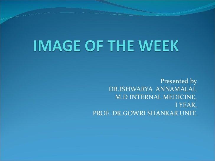Presented by DR.ISHWARYA  ANNAMALAI, M.D INTERNAL MEDICINE, I YEAR, PROF. DR.GOWRI SHANKAR UNIT.