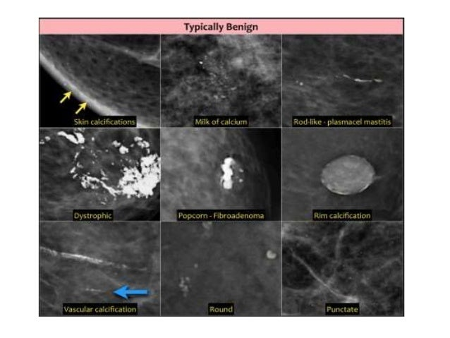 Opinion you images of segmental breast calcifications