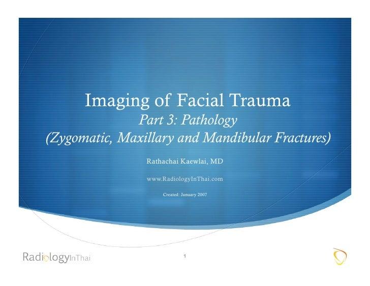 Imaging of Facial Trauma               Part 3: Pathology (Zygomatic, Maxillary and Mandibular Fractures)                 R...