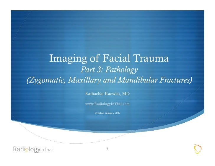 Imaging Of Facial Trauma Part 3 (2) 2