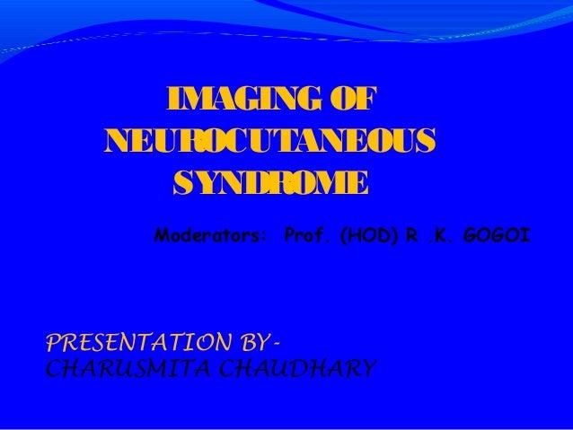 IMAGING OF   NEUROCUTANEOUS      SYNDROME      Moderators: Prof. (HOD) R .K. GOGOIPRESENTATION BY-CHARUSMITA CHAUDHARY