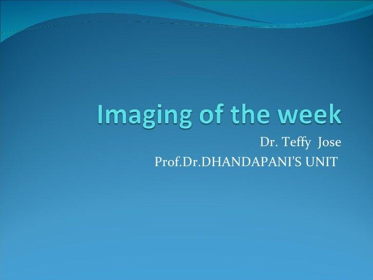 Dr. Teffy  Jose Prof.Dr.DHANDAPANI'S UNIT