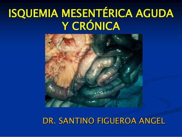 ISQUEMIA MESENTÉRICA AGUDAY CRÓNICADR. SANTINO FIGUEROA ANGEL