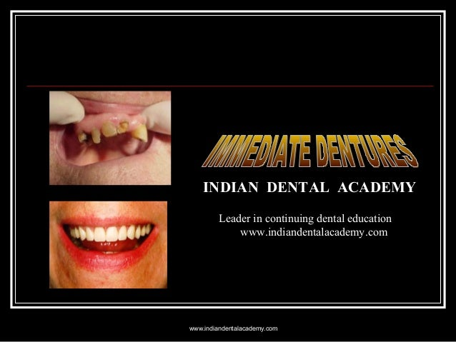 Immediate dentures/ lingual orthodontics courses
