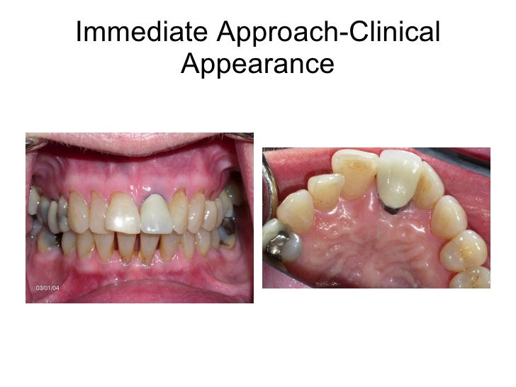 Immediate Approach-Clinical Appearance