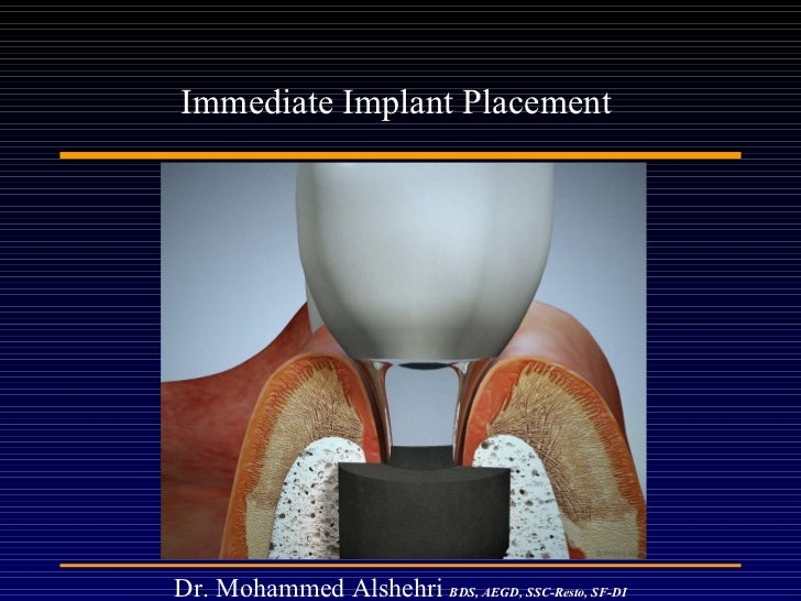 Immediate Implant Placement  Dr. Mohammed Alshehri   BDS, AEGD, SSC-Resto, SF-DI