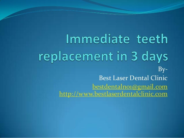 Immediate teeth replacement in 3 days
