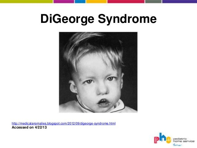 digeorge syndrome facies - photo #5