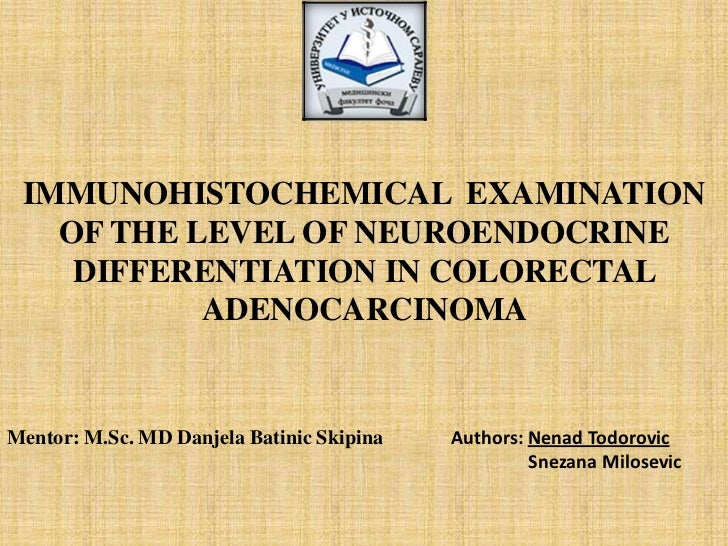 IMMUNOHISTOCHEMICAL EXAMINATION OF THE LEVEL OF NEUROENDOCRINE DIFFERENTIATION IN COLORECTAL ADENOCARCINOMA <br />Mentor: ...