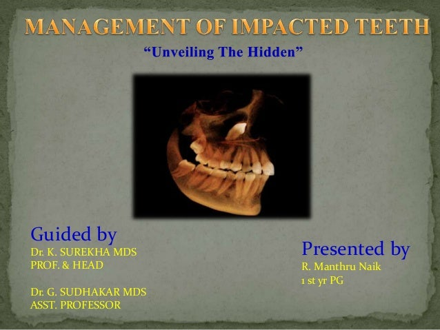 management of impacted teeth
