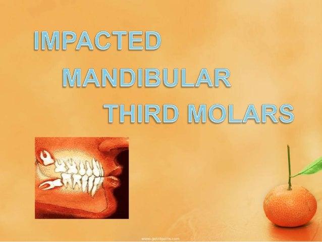 mandibular molar Impactions