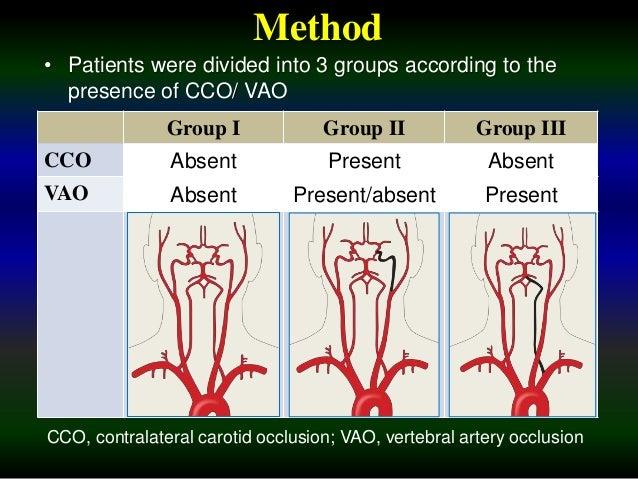 Carotid t Occlusion Carotid Occlusion