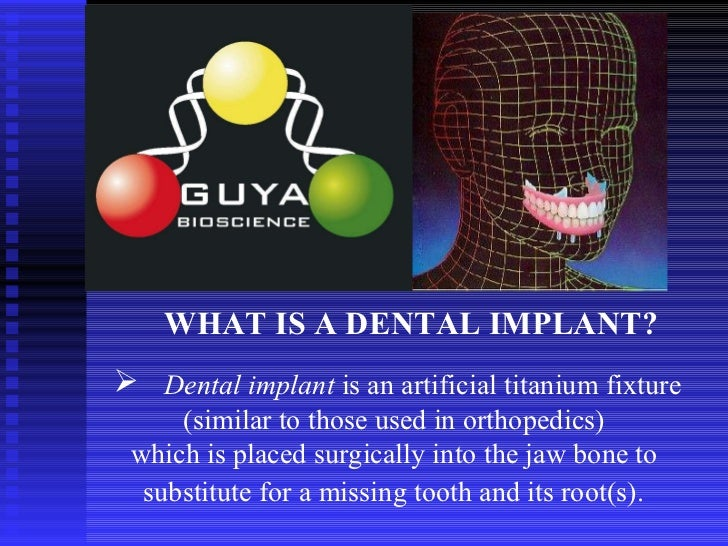 WHAT IS A   DENTAL IMPLANT?   <ul><li>Dental implant  is an artificial titanium fixture (similar to those used in orthoped...