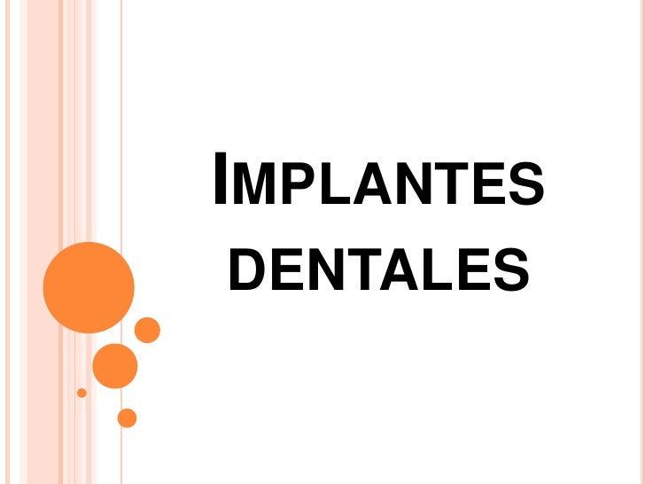 Implantes dentales<br />