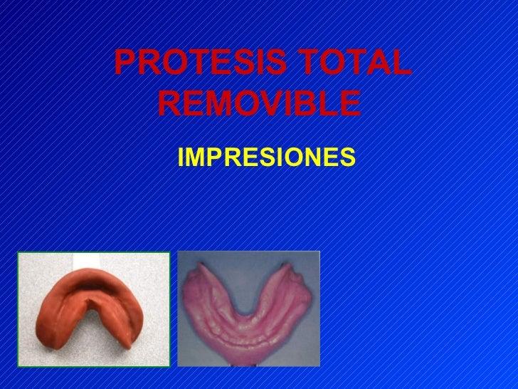 PROTESIS TOTAL REMOVIBLE   IMPRESIONES