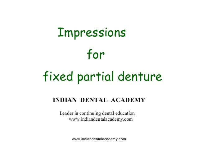 Impressions for fpd/ implant dentistry course