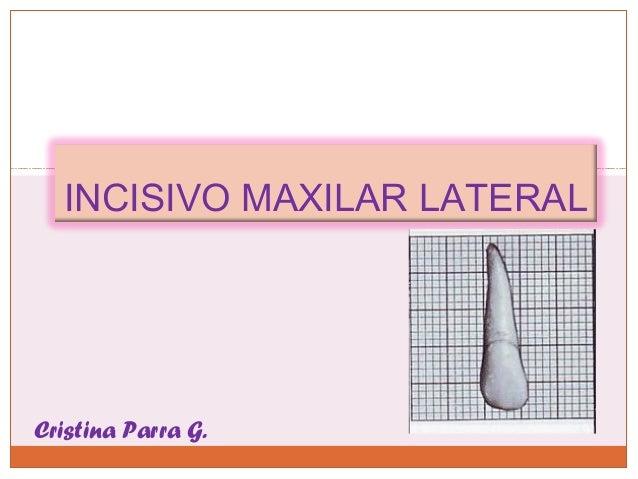 INCISIVO MAXILAR LATERALCristina Parra G.