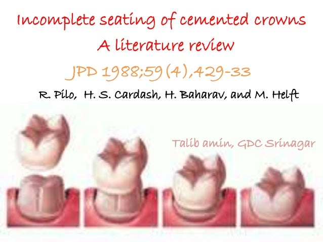 Incomplete seating of cemented crowns A literature review JPD 1988;59(4),429-33 R. Pilo, H. S. Cardash, H. Baharav, and M....