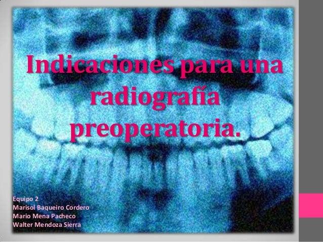 Indicaciones para una radiografía preoperatoria. Equipo 2 Marisol Baqueiro Cordero Mario Mena Pacheco Walter Mendoza Sierra