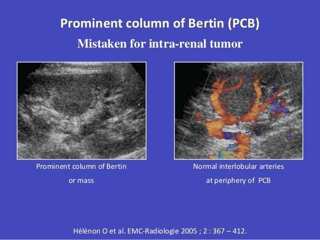 venous ultrasound