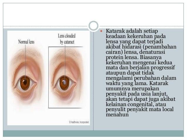 Image Result For Penyakit Mata Fisika
