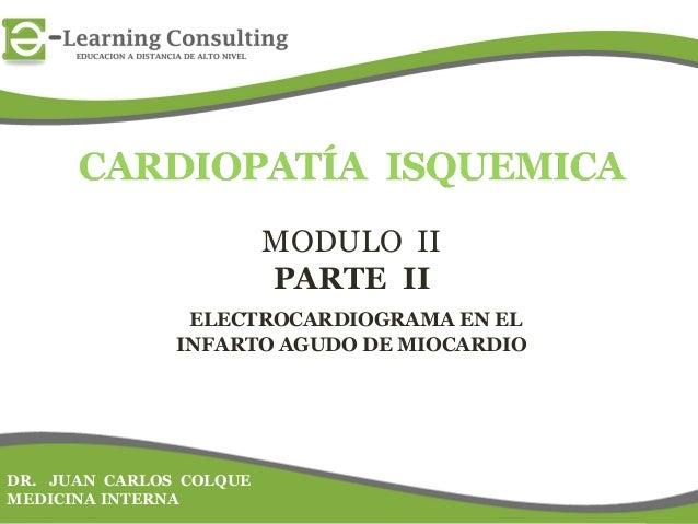 MODULO IIPARTE IIELECTROCARDIOGRAMA EN ELINFARTO AGUDO DE MIOCARDIODR. JUAN CARLOS COLQUEMEDICINA INTERNA