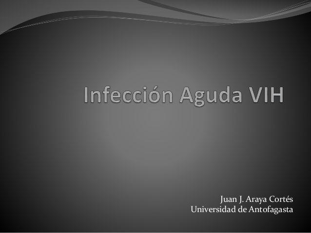 Infección aguda VIH