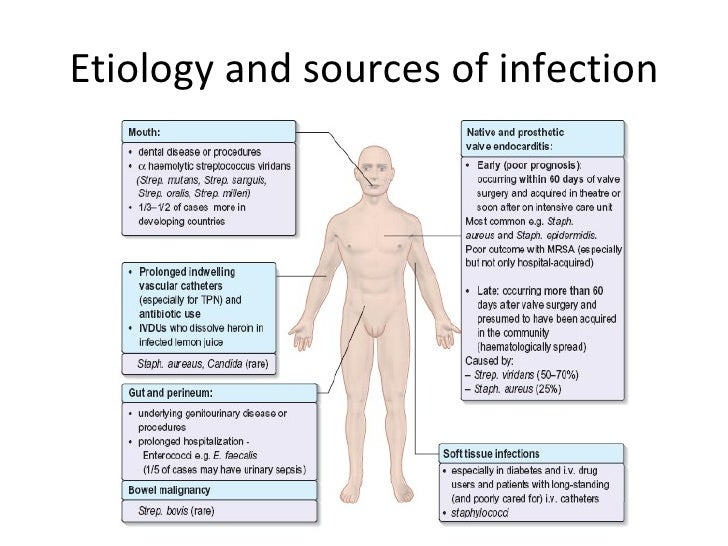 Infective Endocarditis...