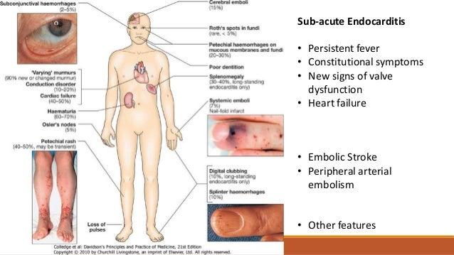 Sub-acute Endocarditis...