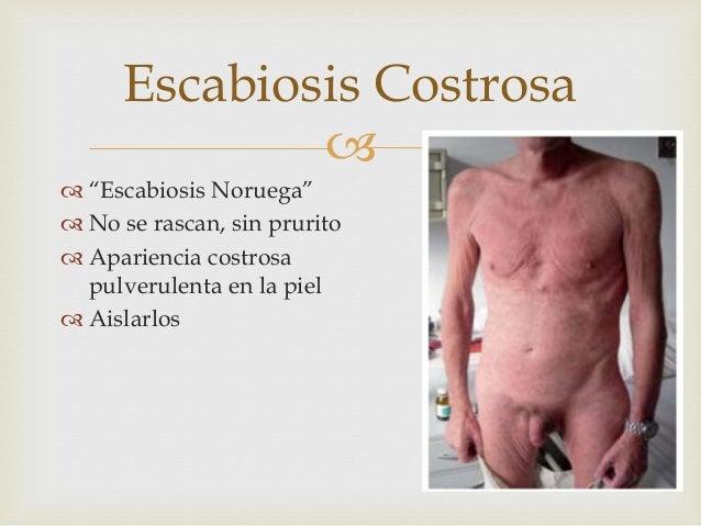 100 % el medio de la psoriasis