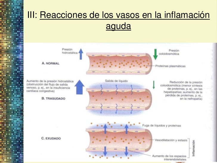 Inflamacion Del Vaso Vasos en la Inflamación