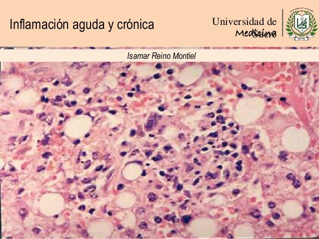 Inflamación aguda y crónica Universidad de SucreMedicina Isamar Reino Montiel
