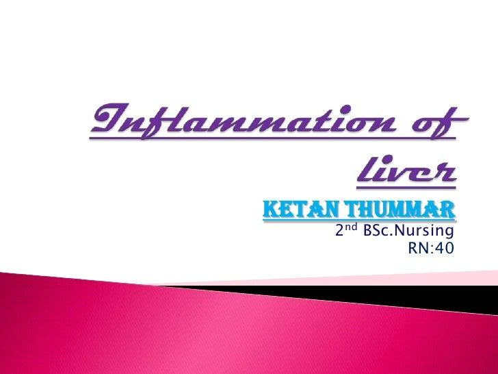 KETAN THUMMAR    2nd BSc.Nursing             RN:40