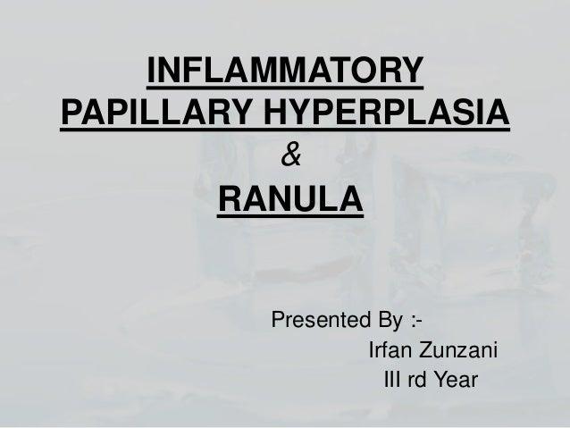 INFLAMMATORY PAPILLARY HYPERPLASIA & RANULA  Presented By :Irfan Zunzani III rd Year