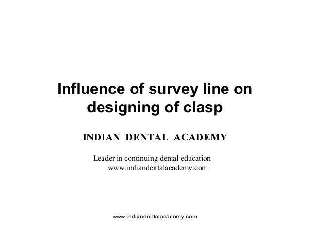 Influence of survey line on designing of clasp / implant dentistry course/ implant dentistry course