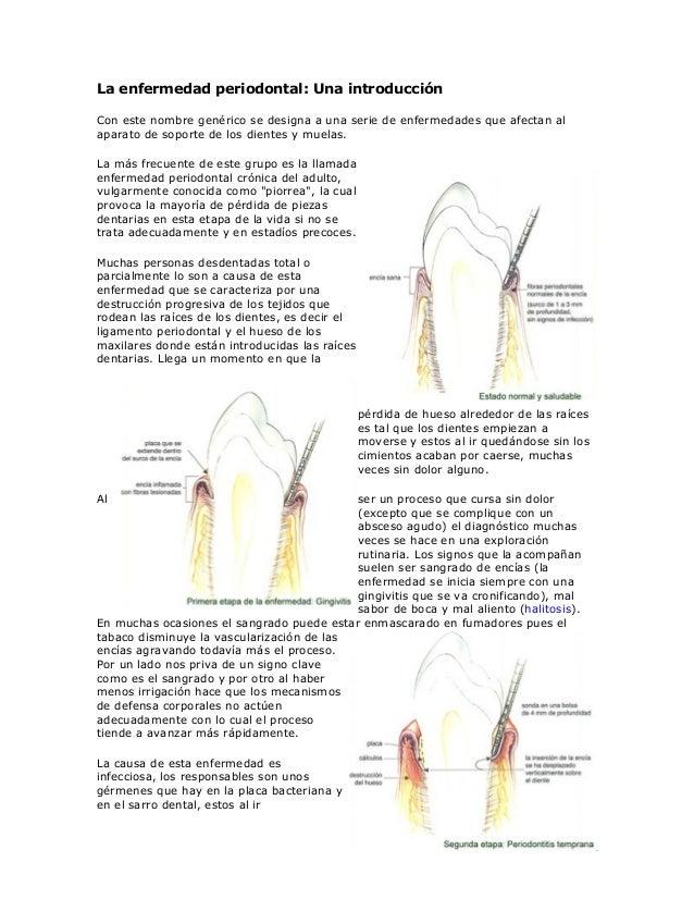 La enfermedad periodontal: Una introducciónCon este nombre genérico se designa a una serie de enfermedades que afectan ala...