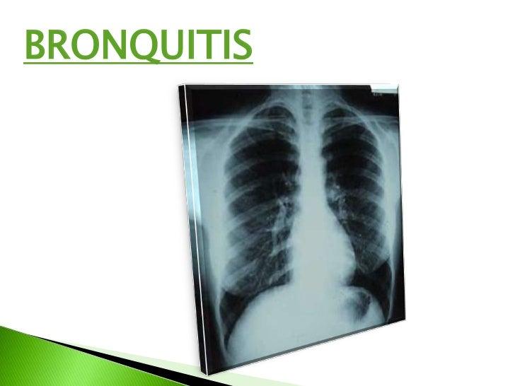 bronquitis y cuidados de enfermeria