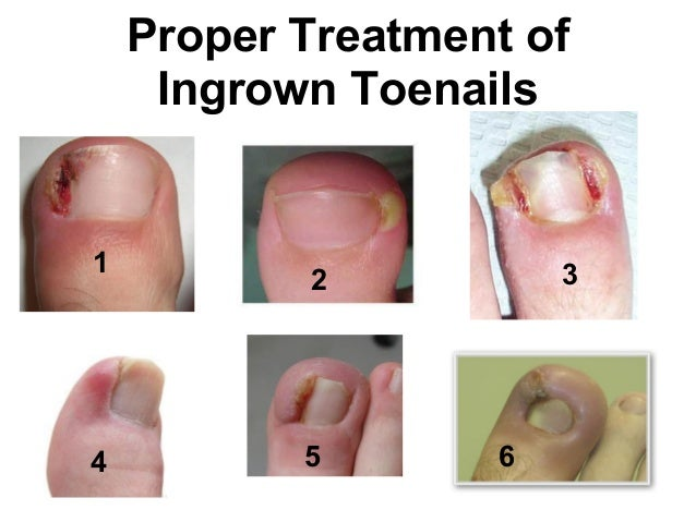 how to fix claw toes without surgery