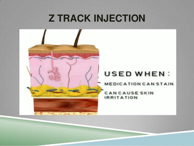 The gallery for --> Z Track Injection