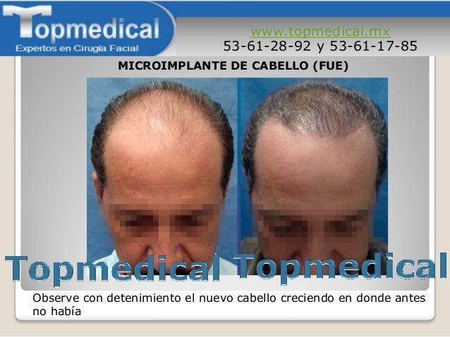 www.topmedical.mx 53-61-28-92 y 53-61-17-85 Observe con detenimiento el nuevo cabello creciendo en donde antes no había MI...