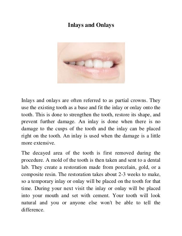 Inlays and Onlays  Inlays and onlays are often referred to as partial crowns. They use the existing tooth as a base and fi...
