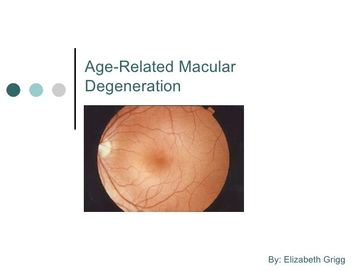 Age-Related Macular Degeneration By: Elizabeth Grigg