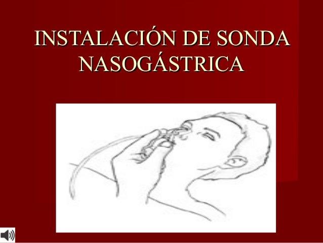 INSTALACION DE SONDA NASOGASTRICA