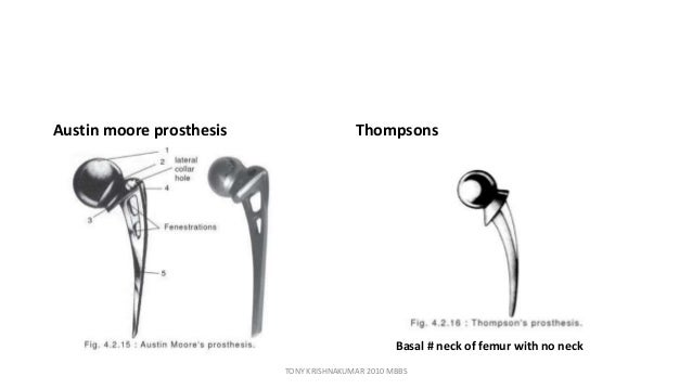 austin moore prothesis Okay: insertion of an austin moore prosthesis is more correctly known what is an austin moore hip replacement 2018 4 out of 5 based on 246 ratings.