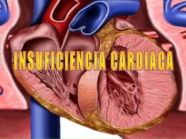 Insuficiencia cardiaca1