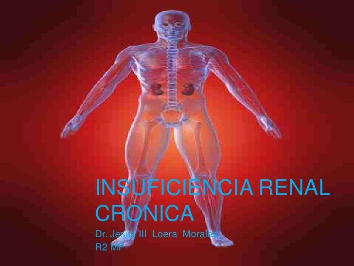 Insuficiencia Renal Cronica<br />Dr. Jesus III  Loera  Morales<br />R2 MF <br />