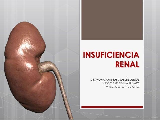 INSUFICIENCIA        RENAL DR. JHONATAN ISRAEL VALDÉS OLMOS        UNIVERSIDAD DE GUANAJUATO          M ÉDICO CIRUJANO