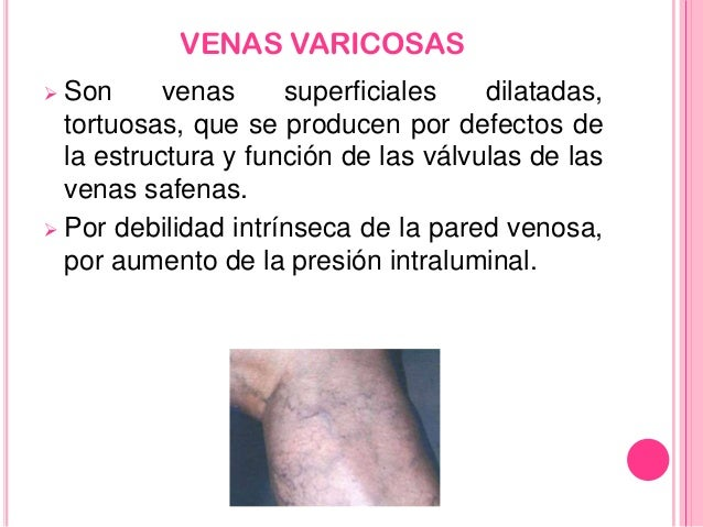 El tratamiento varikoza el ungüento la crema